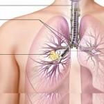 حقائق وخرافات حول سرطان الرئة