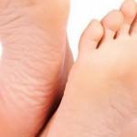 أسباب وعلاج سخونة القدمين أثناء الليل