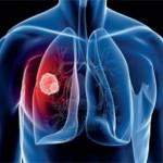 دراسة جديدة عن علاقة البيتا كاروتين بسرطان الرئة