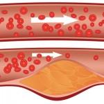 لقاح جديد : لعلاج مرضى الكولسترول بتكلفة أقل