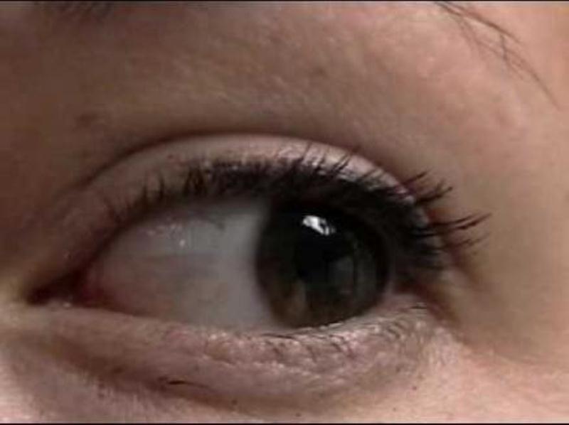 اكتشفوا أسباب انتفاخ العين