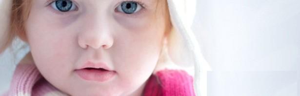 1cda7ac4f أسباب الهالات السوداء عند الأطفال | المرسال