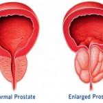 """الغذاء المناسب لمريض سرطان البروستاتا """" Prostate Cancer """""""