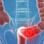 نصائح للوقاية من سرطان القولون