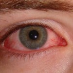 اعراض تحذيرية لأمراض العيون الخطيرة