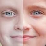 """دراسة أمريكية """"هذه هي أبرز علامات الكشف المبكر عن السرطان"""""""