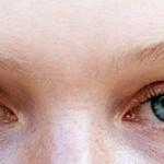 اسباب تباين لون قزحية العين