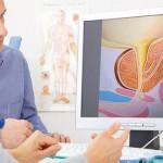 """دراسة طبية حديثة """"ممارسة الجنس يحميك من سرطان البروستاتا """""""