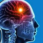 دراسة صينية حديثة حمض الفوليك يحمي من الجلطة الدماغية ويعالجها