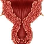 اسباب و اعراض تضخم الرحم