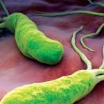 """تعرف على جرثومة الملوية البوابية """" Helicobacter pylori """""""