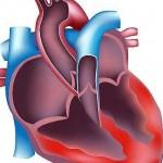 اعراض ضعف عضلة القلب واسباب رئيسية لحدوث الضعف