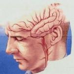 دراسة : علاقة جينية بين الصداع ومتلازمة القولون العصبي