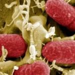 الاسباب المرضية لـحالة ظهور دم بالبول ومتى يكون الامر خطير ومقلق