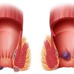 أعراض الشرخ الشرجي و كيفية العلاج