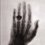 يد زوجه روتنغن - 316942