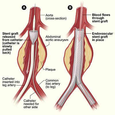 Abdominal aortic aneurysm