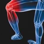 علاقة هرمون الإستروجين بمشكلات الركبة