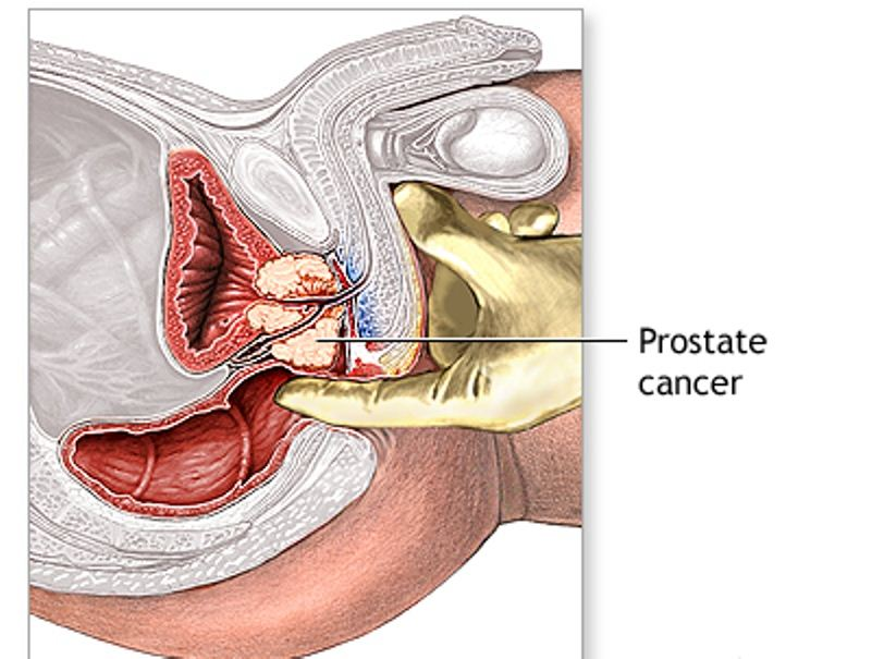 preventive measure and stages of prostate cancer