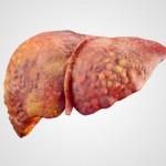 أسباب ارتفاع إنزيمات الكبد أثناء الحمل وتأثيرها على الجنين