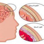 التهاب السحايا عند الأطفال حديثي الولادة