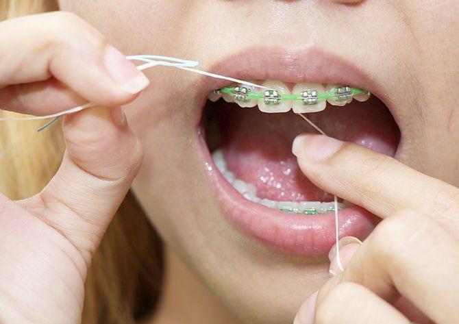 تنظيف تقويم الاسنان %D8%AE%D9%8A%D8%B7-%D8%A7%D9%84%D8%A7%D8%B3%D9%86%D8%A7%D9%86-Optimized