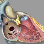 اسباب فتحات القلب ومضاعفاتها