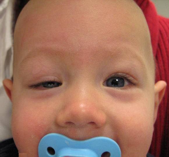 احتياطات عند الإصابة بـ الكيس الدهني في العين