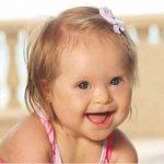 متلازمة داون التي تصيب الأطفال
