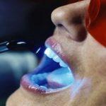 هل تسبب أمراض الأسنان واللثة إرتفاعآ في ضغط الدم ؟
