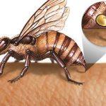 الحساسية من لسعة النحل