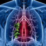 دراسة حديثة تثبت أن العلاج الإشعاعي ليس مفيد لسرطان الرئة