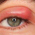 اضرار التهاب جفن العين