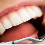 طرق لـ منع تسوس الاسنان
