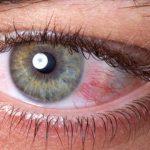طرق إجراء قياس ضغط العين
