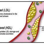 """دواء جديد لعلاج ارتفاع الكوليسترول """" AMG145 """""""