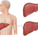 الموافقة على اصدار نوعين من ادوية الفيروس الكبدي ج