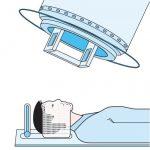 شرح طريقة علاج الاورام السرطانية بالاشعة