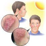 الادوية التي تسبب زيادة حساسية الجلد للشمس