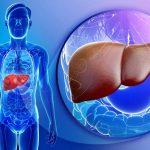 علامات مبكرة تدل على الإصابة بأمراض الكبد