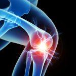 الادوية المستخدمة في علاج التهابات المفاصل