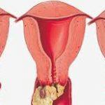 أسباب وراء الالتهابات المهبلية