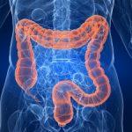 الأطعمة التي يجب تجنبها للوقاية من سرطان القولون