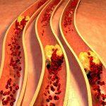 أشياء  يريدك خبراء التغذية أن تعرفها عن الكوليسترول