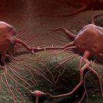 الاسباب الخفية التي تؤدي الى السرطان