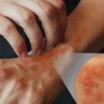 استخدام العسل في علاج حساسية الجلد