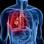 علامات تحذيرية لوجود جلطة دموية في الجسم