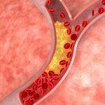 الكوليسترول الحميد يمنع الخرف و السكتات الدماغية