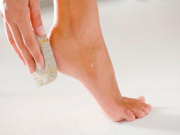طرق مختلفة لعلاج جفاف وتشققات القدمين المرسال