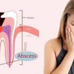 علاج خراجات الاسنان لدى الاطفال